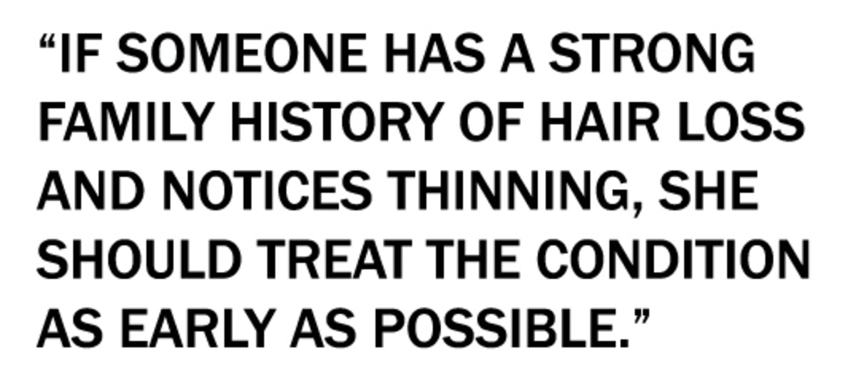 frontal hair loss quote